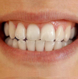 Final picture how to whiten teeth in photoshop