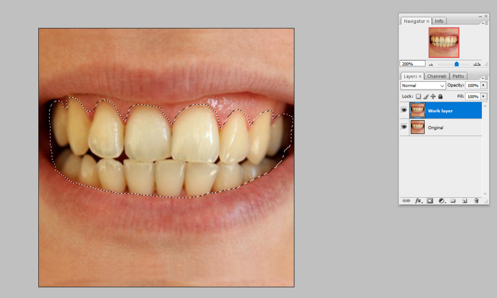 Step two how to whiten teeth in photoshop